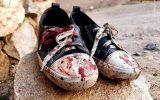 باشید و ببنید؛ خون کودکانی که گریبان تروریست ها را می گیرد